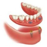 Rehabilitación mediante dos implantes y sobredentadura removible