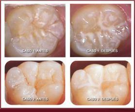 odontologia preventiva sellados-fisura